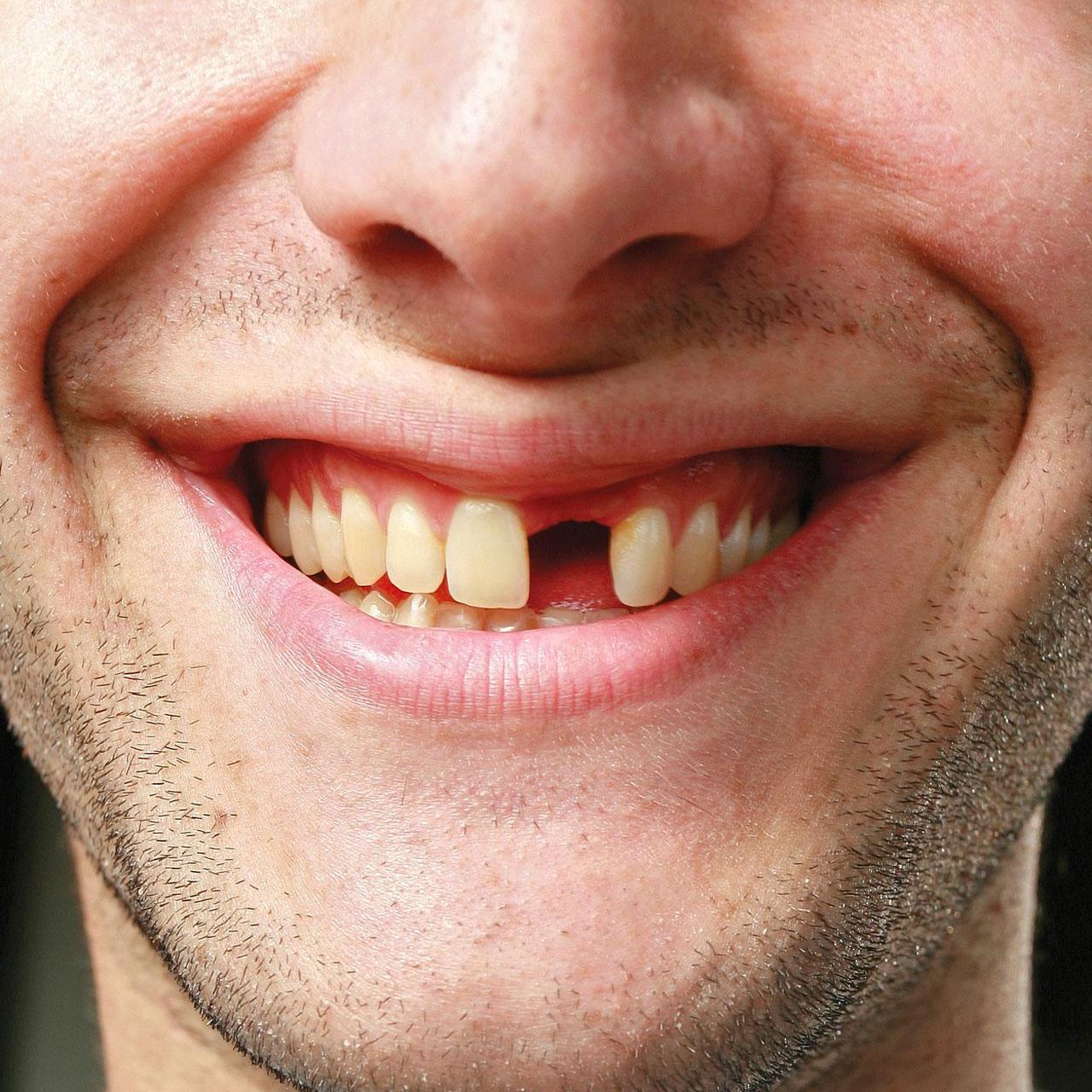 Сниться что выпали зубы у другого человека